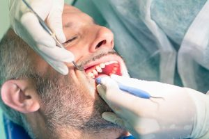 Periodontal Scaling Root Canal Planing In Brookings Or Oregon